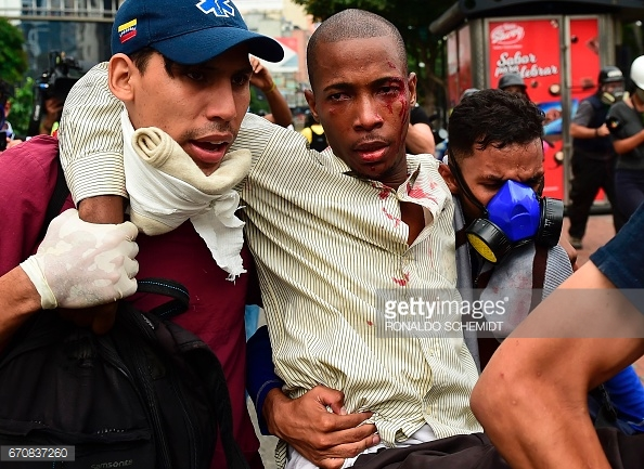 venezuela-demonstrators-clash-and-inhjured-alt