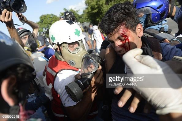 venezuela-in-crisis-2017