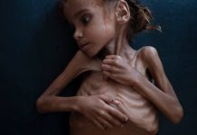 Amal-Hussaun-Died-From-Starvation-Thanks-to-Sauds