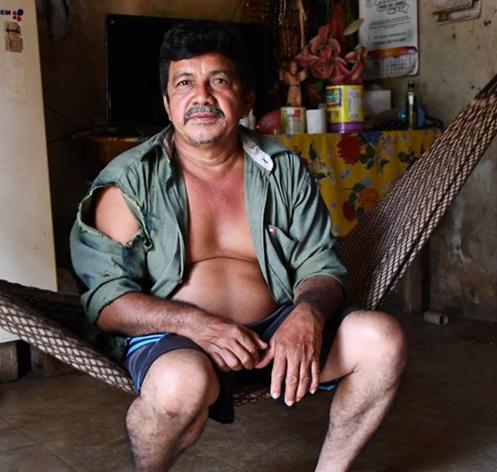 chagas-disease-mexico